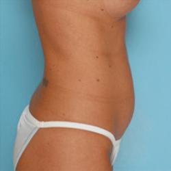 Manhattan abdominoplasty before 2